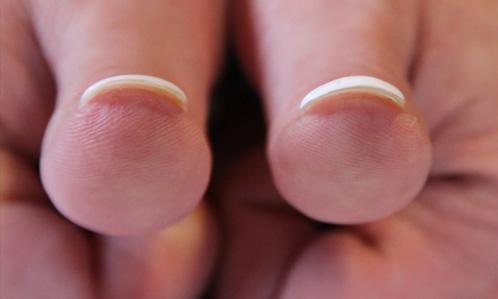 Fingernägel2